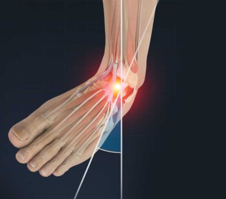 ankle sprain treatment springfield ankle injury chicopee east