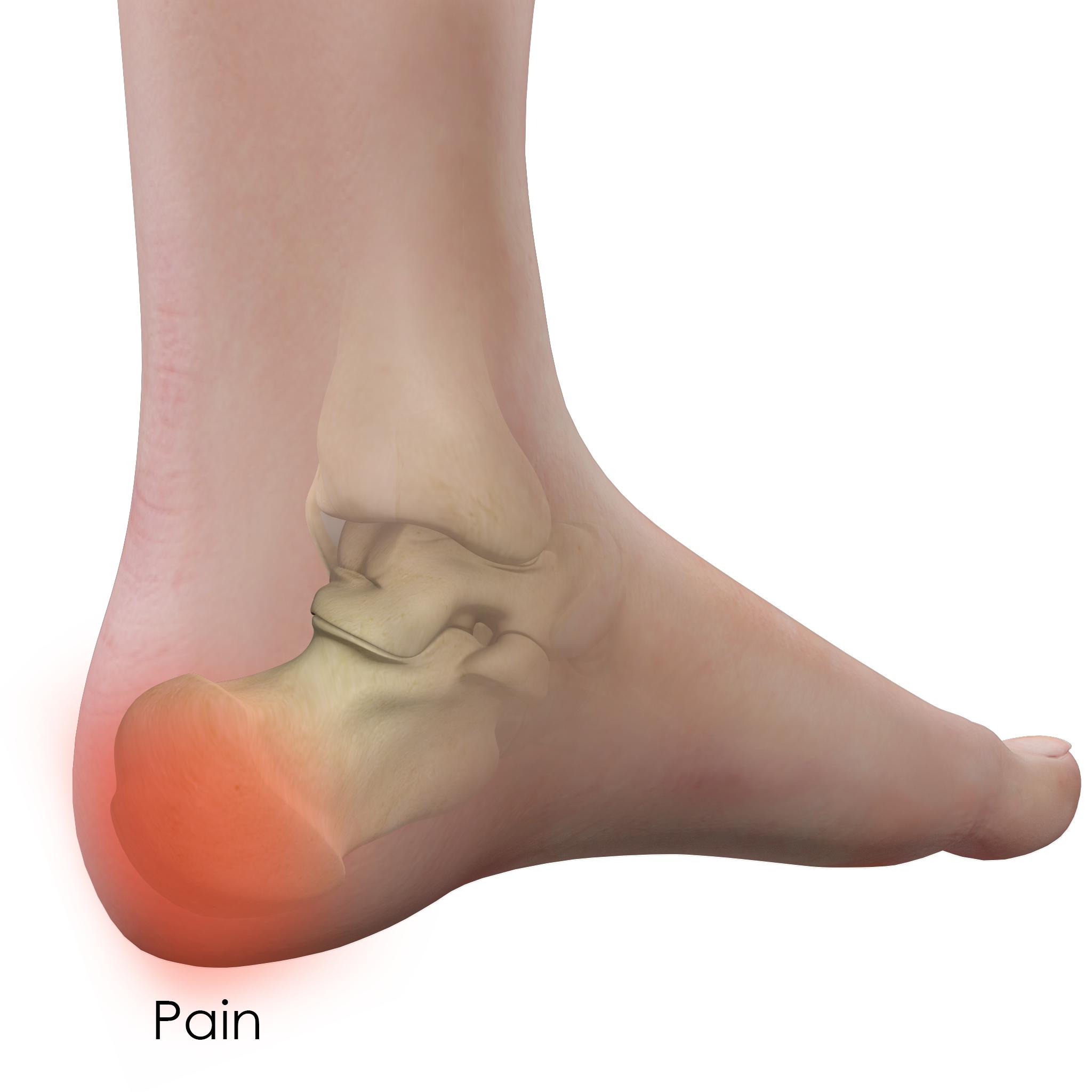 Heel Pain Treatment East Longmeadow