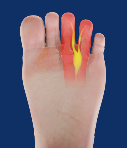 Image result for Morton's neuroma treatment