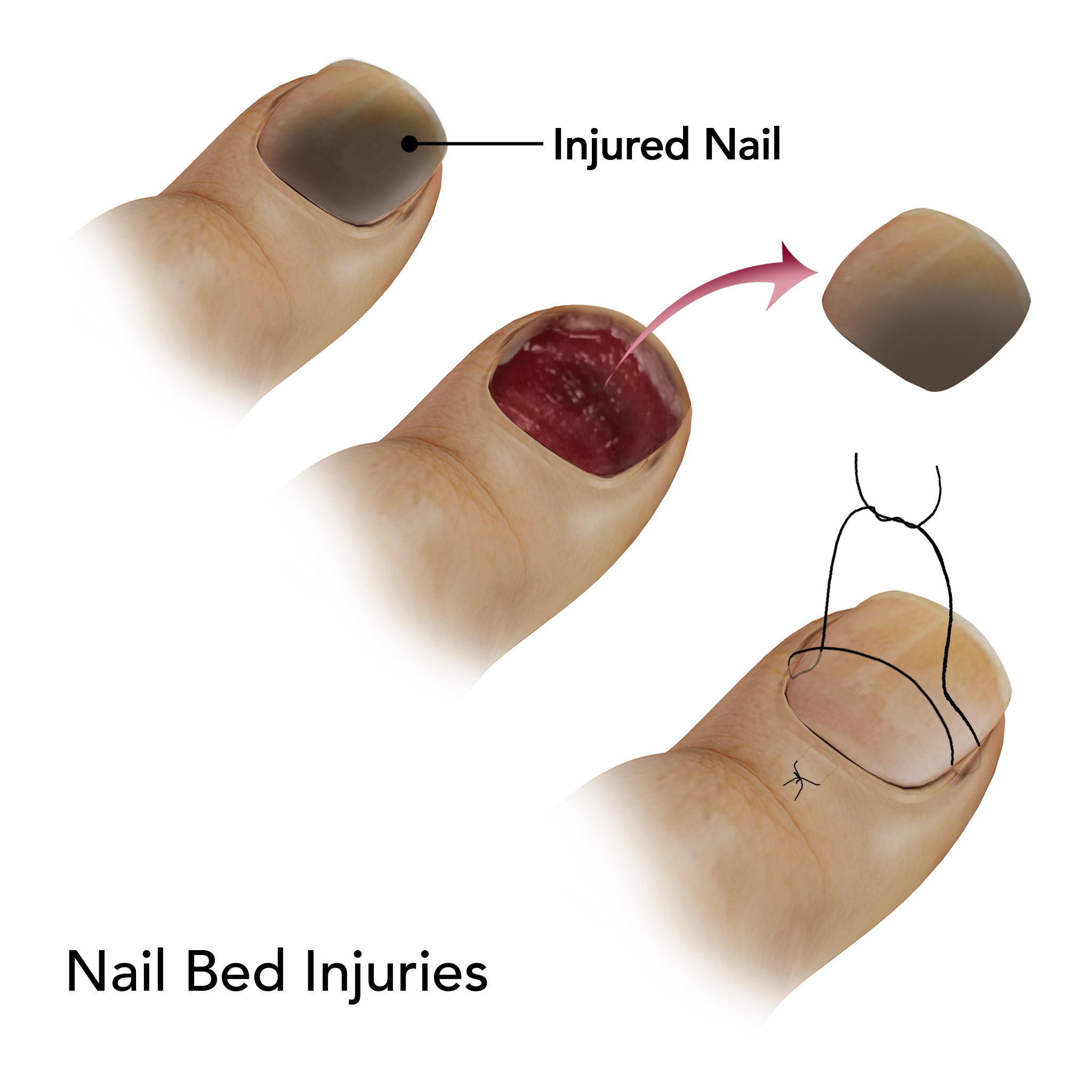 Nail Bed Injuries Springfield | Nail Injuries Treatment East ...