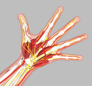 Hand Surgeon Springfield Wrist Surgeon Chicopee East Longmeadow Ma